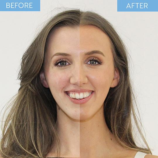 New He-Shi H2O Glow - Hyaluronic Facial Mist 100ml